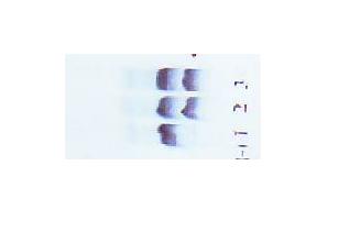 заказать, купить Набори для електрофорезу гемоглобіну в кислоті по низкой цене в Украине